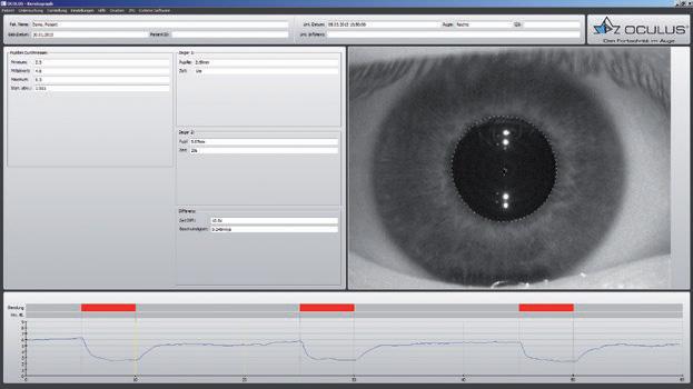 Gabinet Okulistyczny Agnieszka Papierniak - laserowa korekcja wzroku, iniekcje doszklistkowe, nowoczesny gabinet Nowy Sącz